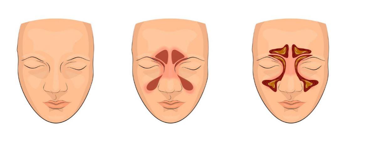 rinozine - alergiczny nieżyt nosa5