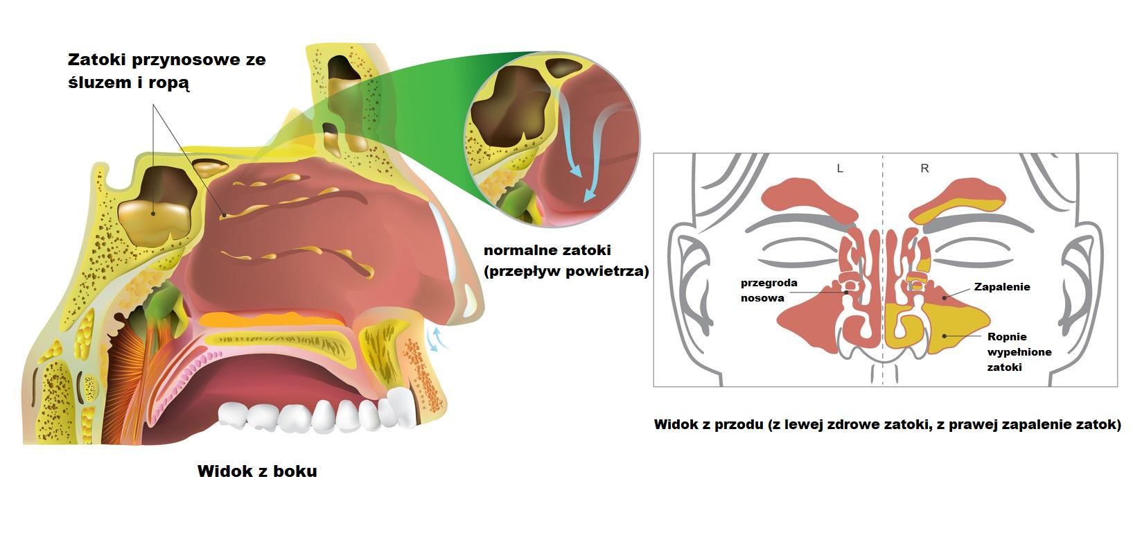 Human Sinusitis, Inflammation. Illustration, Vector art.