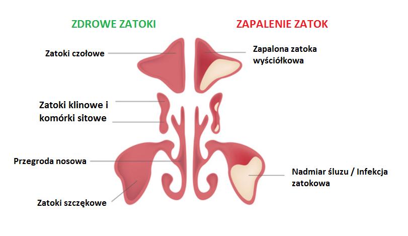 rinozine.pl - zapalenie zatok - opis